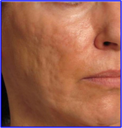 Acido ialuronico acne pre