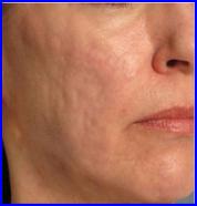 acido ialuronico acne post