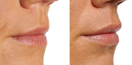 dermal-fillers-lips