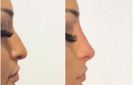 Non surgical nose job