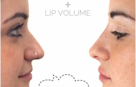 NON SURGICAL NOSE JOB + LIP VOLUME