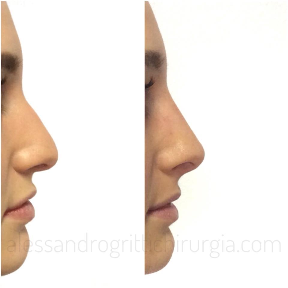 nose/non/surgical/2